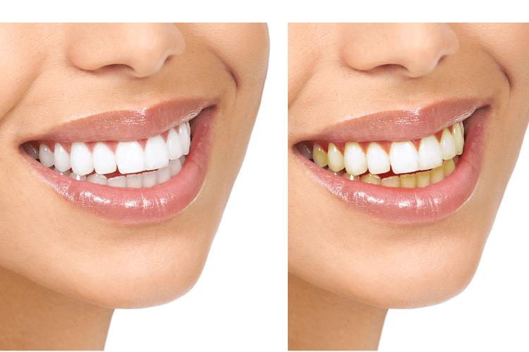 la foto del prima e dopo dello sbiancamento dentale effettuato dal dottore roberto bogoni
