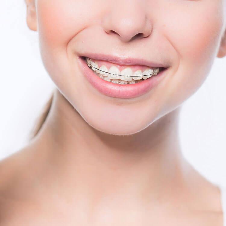 ortodonzia tradizionale trattamento con attacchi metallici o di ceramica (bianchi)