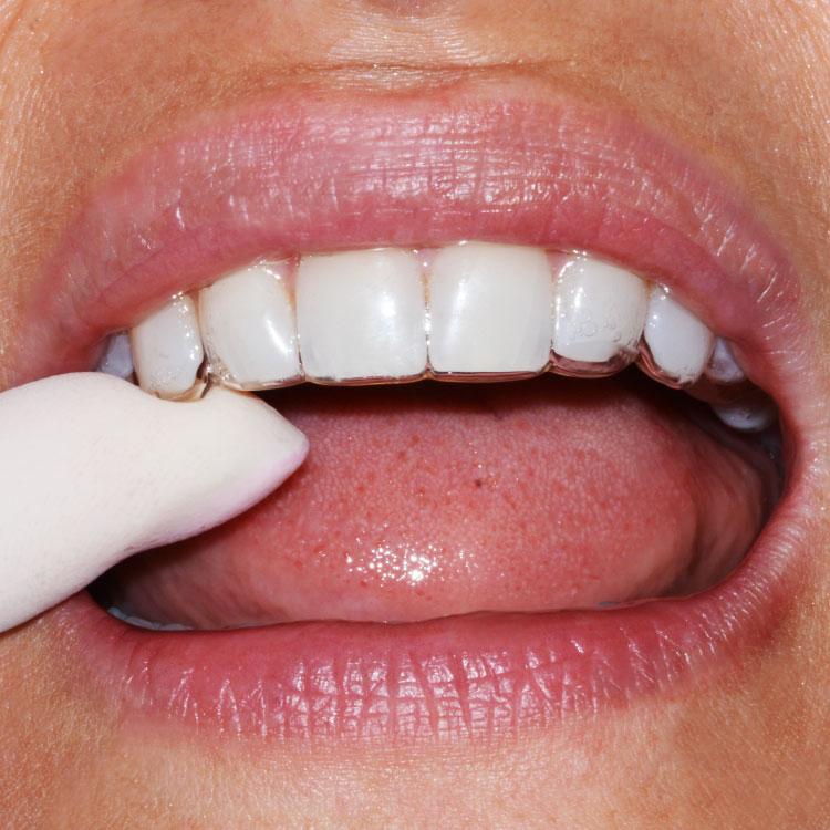 la foto di un'apparecchio invisibile fatto dallo studio dentistico di san bonifacio